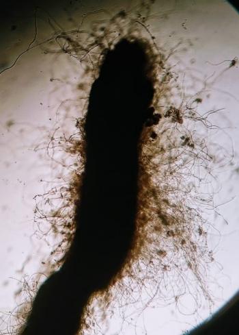 Detalle de micorriza de Tuber aestivum en encina adulta de la finca Muñovela